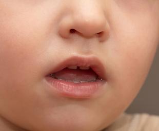 Η κακοσμία του στόματος – Συμβουλές για την αποφυγή της